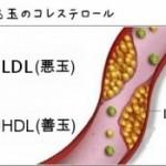 動脈硬化、心臓病とコレステロール②原因は、酸化した油だ!!